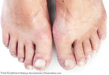 Foot Eczema Natural Treatment