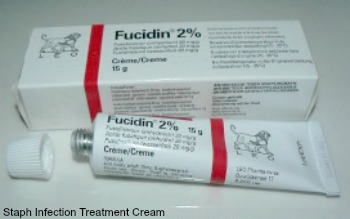 steroid creams for eczema boots