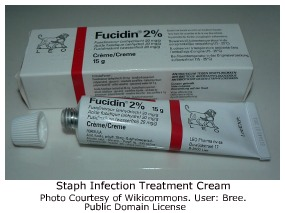corticosteroid ointments or injections