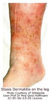 Stasis Dermatitis